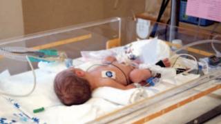 תינוקת מונשמת ב'שערי צדק' (למצולמת אין קשר לכתבה)